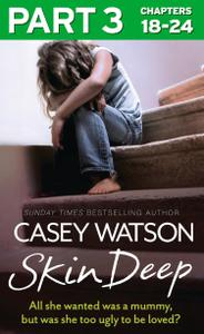 Skin Deep: Part 3 of 3: All she wanted was a mummy, but was she too ugly to be loved?