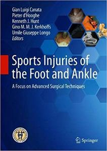 Sports Injuries of the Foot and Ankle: A Focus on Advanced Surgical Techniques