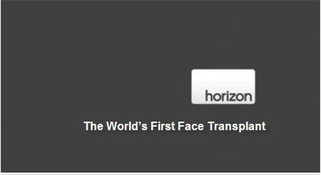 BBC Horizon – The World's First Face Transplant