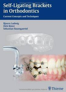 Self-ligating Brackets in Orthodontics (Repost)