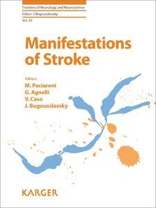 Manifestations of Stroke (repost)