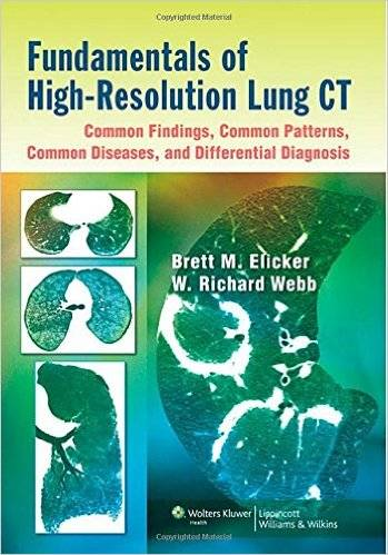 Fundamentals of High-resolution Lung CT (repost)