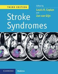 Stroke Syndromes, 3rd edition