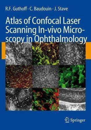 Atlas of Confocal Laser Scanning In-vivo Microscopy in Ophthalmology: Principles and Applications in Diagnostic and Therapeutic