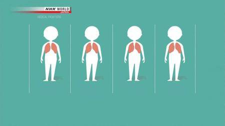 NHK - Medical Frontiers: Cancer Treatment on Target (2018)
