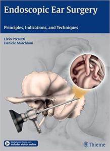 Endoscopic Ear Surgery: Principles, Indications, and Techniques