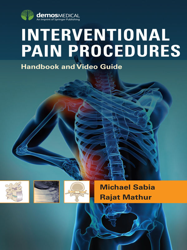 Interventional Pain Procedures: Handbook and Video Guide