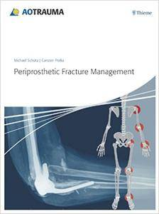 Periprosthetic Fracture Management (Repost)