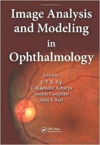 Image Analysis and Modeling in Ophthalmology (repost)
