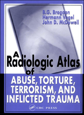 A Radiologic Atlas of Abuse, Torture, Terrorism, and Inflicted Trauma