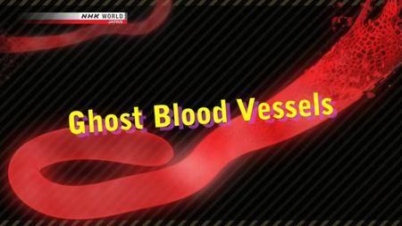 NHK Documentary - Ghost Blood Vessels (2018)