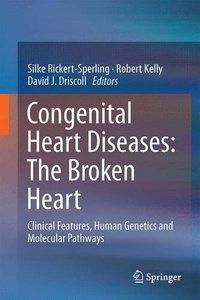 Congenital Heart Diseases: The Broken Heart: Clinical Features, Human Genetics and Molecular Pathways