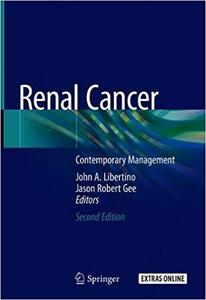 Renal Cancer: Contemporary Management Ed 2