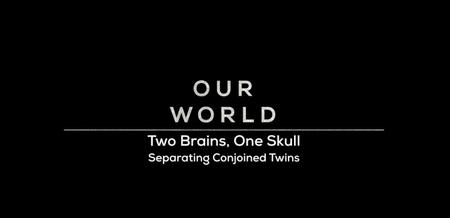 BBC Our World - Two Brains, One Skull: Separating Conjoined Twins (2019)