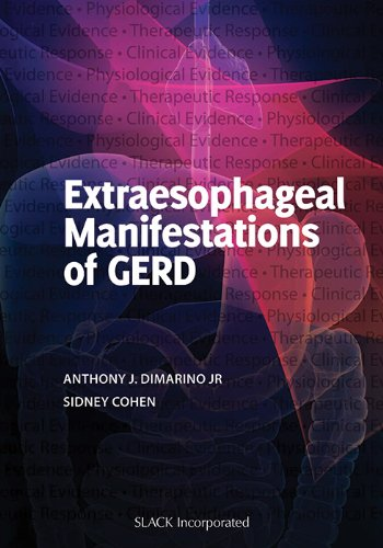 Extraesophageal Manifestations of GERD (repost)