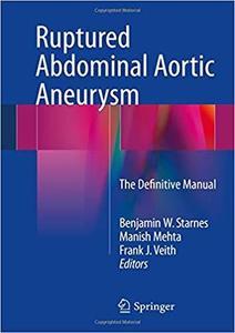 Ruptured Abdominal Aortic Aneurysm: The Definitive Manual [Repost]