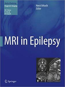 MRI in Epilepsy